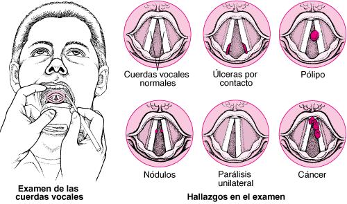 enfermedades laríngeas
